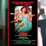 X-Ray aka Hospital Massacre (1981) Film Review - A Long-Neglected Slasher